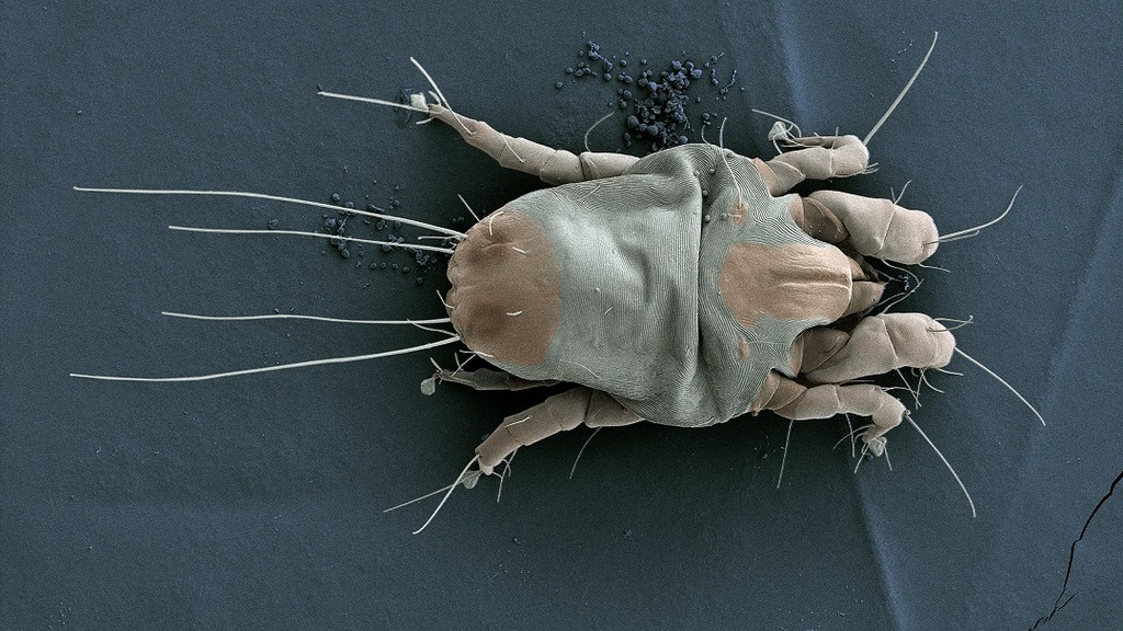 Can You See Dust Mites With the Human Eye